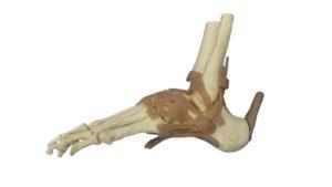 足首捻挫で損傷する靭帯